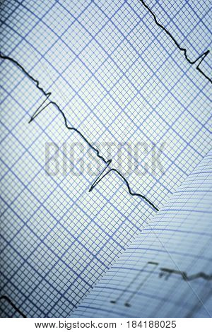 ECG complexes on lined paper. Close-up photo