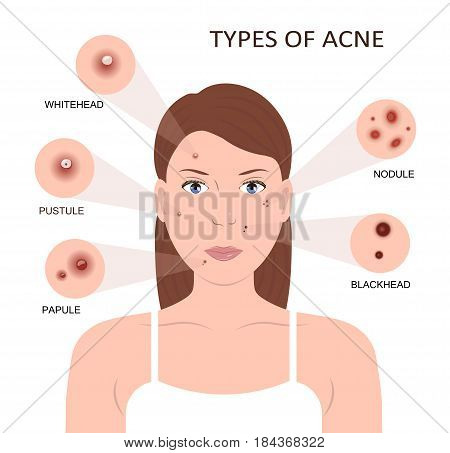 Types of acne. Girl with skin problems. Woman with pimples on the face. Vector illustration flat design