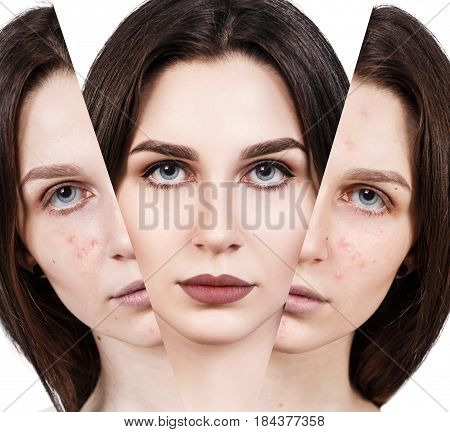 Young woman rebirth from bad acne skin to perfect. Before and after treatment and makeup.
