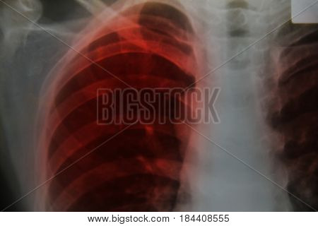 Close up chest x-ray tb patient medical science background