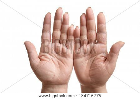 Female hands with dermatitis on white background