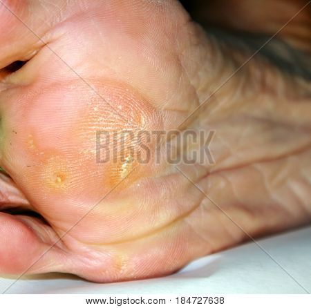 Corn on the foot. Foot sole with corn.
