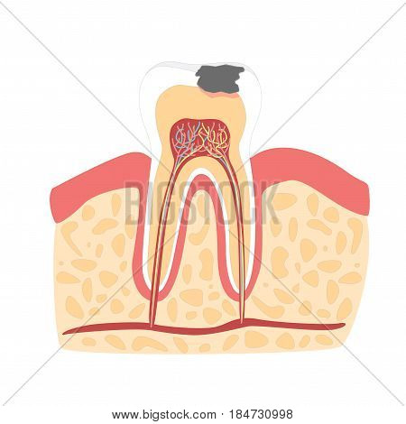 Cartoon Tooth with Stage of Dental Caries Formation Flat Design Style Isolated on a White Background. Vector illustration