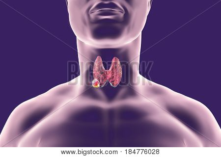 Thyroid cancer. 3D illustration showing thyroid gland with tumor inside human body