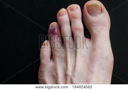 Broken Toe Showing Bruising On Skin Due To Injury