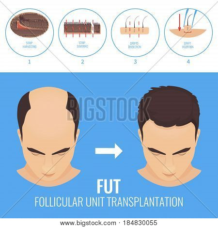 Male hair loss treatment with follicular unit transplantation. Strip method. Stages of FUT procedure. Alopecia infographic template. Clinics and diagnostic centers concept design. Vector illustration.