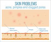 Skin problems such as acne, pimples and clogged pores. Top view of skin and side view of pores. Vector. poster