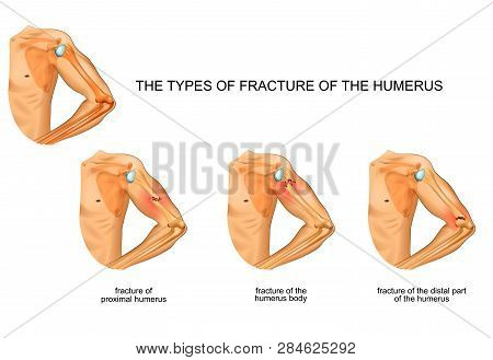 Vector Illustration Of Humerus Fracture, Trauma, Surgery