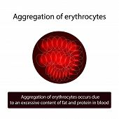 Aggregation of red blood cells. Erythrocytes. Vector illustration on isolated background poster