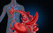 Sickle cell cardiovascular heart blood circulation and anemia as a disease with normal and abnormal hemoglobin in a human artery anatomy as a medical illustration concept with 3D illustration elements. poster