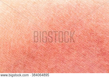 Sunburn Skin As A Texture Or Background. Selective Focus. Extreme Macro