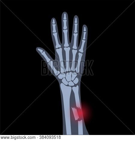 X Ray Of Arm Fracture With Red Pain Point. Broken Hand With Inner Closed Comminuted Type Of Fracture