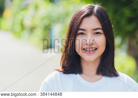Portrait Of Asian Teen Beautiful Young Woman Smile Have Dental Braces On Teeth Laughing Outdoor, Med