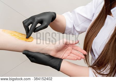 Honey Depilation. Arm Waxing. Female Beautician In White Medical Overall Black Latex Gloves Doing Su