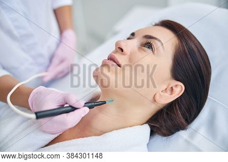 Cosmetician Using An Electrocautery Machine For Removing A Nevus
