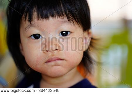Pityriasis Rosea  Appear Scaly Spot On Baby Face,asian Baby Close Up Front Portrait On Soft Blurred