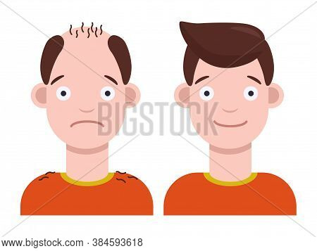 Flat Vector Illustration: Man With Bald Head And Man With Thick Hair. Hair Transplant Concept. Hair