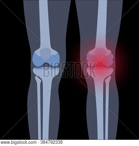 X Ray Of Normal Knee And Arthritic Joint. Rheumatoid Arthritis Disease. Human Leg Bone Anatomy. Skel