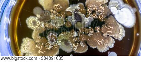 Mold in Petri dish Mold growing in a Petri dish