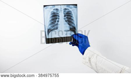 X-ray Of The Lungs In The Hands Of A Doctor,a Medical Worker Looks At An X-ray,pneumonia Of The Lung