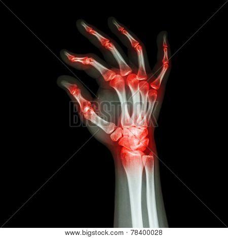Rheumatoid Arthritis , Gouty Arthritis