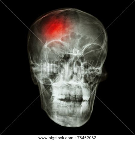 """"""" Stroke (cerebrovascular accident) """" X-ray side of asian skull poster"""