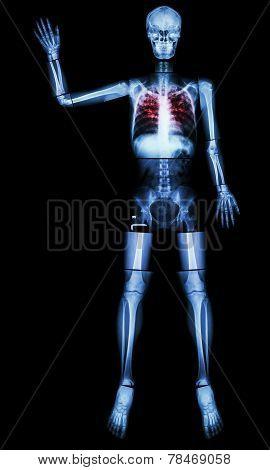 Stop Tb(tuberculosis)