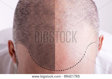 Hair Loss - Before And After