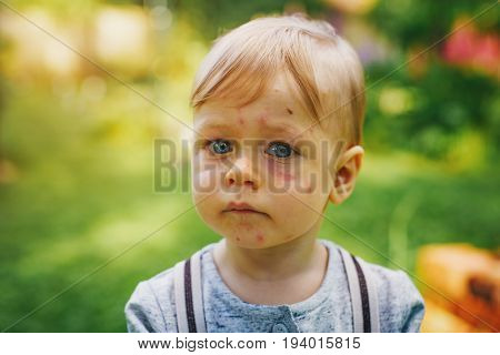 One year unhappy child with allergy and insect bites on face. Portrait in summer garden.