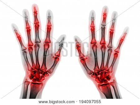 Arthritis in multiple joint of fingers . Film x-ray of both hands and wrists .