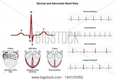 Normal and Abnormal Heart Rate infographic diagram including activation of atria ventricle and recovery wave also chart of normal fast slow irregular heartbeats for medical science education