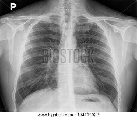 X-ray Image Of The Chest Showing The Internal Anatomy Of The Rib Cage.