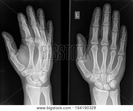 X-ray Photo Of A Hand.