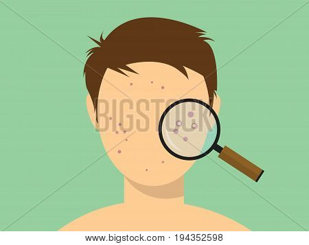 human male acne face with magnifying glass vector