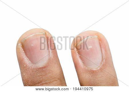 White spots on fingernails isolated on white background.