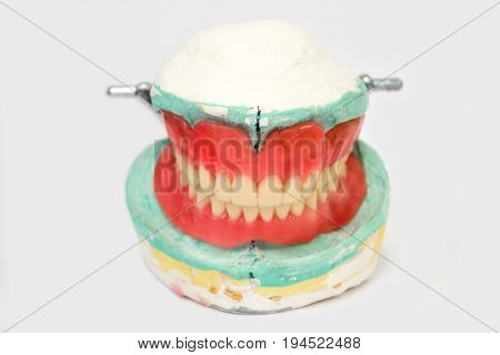 Generic image of a denture or crown used in modern dentistry.