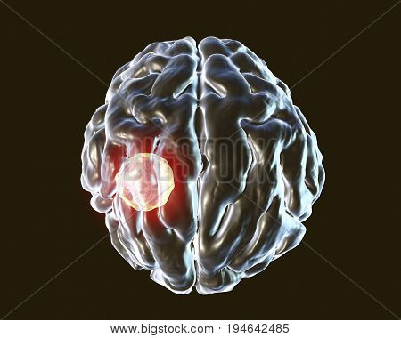 Brain abscess caused by parasitic protozoan Toxoplasma gondii, 3D illustration