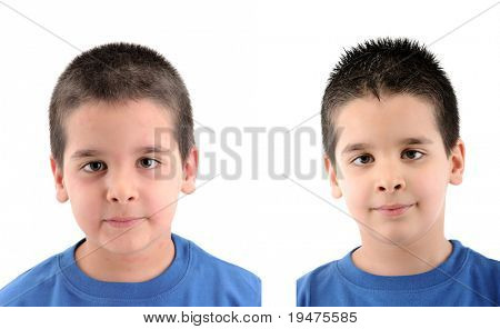Before & After - close up image a little boy Â?Â?s face suffering severe urticaria - a series of URTICARIA images.