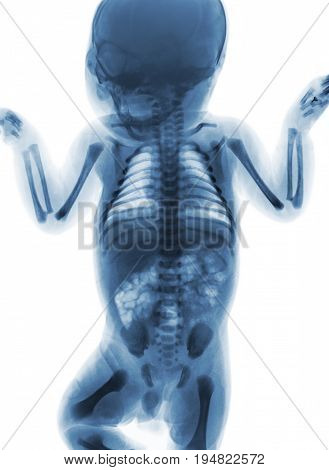Film x-ray whole body of normal infant . front view .