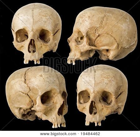 Human Skull in four angles on black background