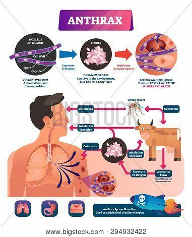 Anthrax Vector Illustration. Labeled Medical Infection Disease Cycle Scheme. Bacterial Illness Used