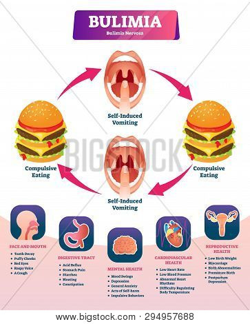 Bulimia Vector Illustration. Labeled Self Induced Vomiting Diagnosis Scheme. Medical Explanation Wit