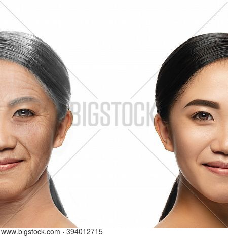 Comparison. Portrait Of Beautiful Asian Woman With Problem And Clean Skin, Aging And Youth Concept,