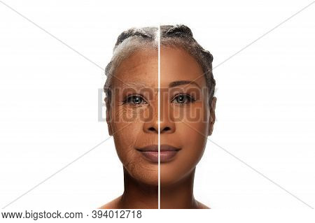 Comparison. Portrait Of Beautiful African Woman With Problem And Clean Skin, Aging And Youth Concept