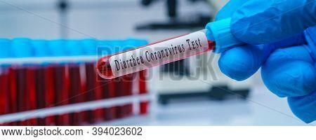 Test tube for test SADS-CoV. Swine acute diarrhea syndrome coronavirus   is a coronavirus related to Rhinolophus bat coronavirus HKU2