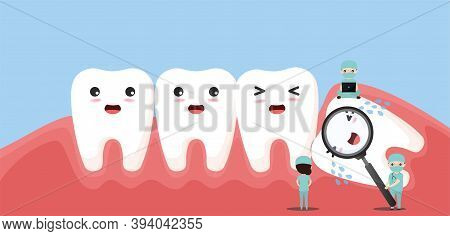 Group Of Small Dentists Are Caring For A Large Tooth. Impacted Wisdom Tooth Character Pushing Adjace