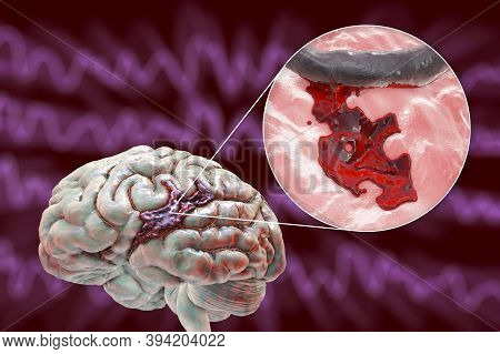Hemorrhagic Stroke, 3d Illustration Showing Hemorrhage On The Brain Surface And Closeup View Of The