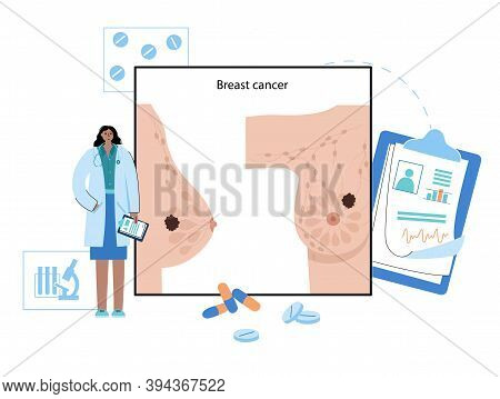 Female Breast Cancer Poster. Tumor Or Neoplasm In Human Chest Medical Banner. Nipple, Lobule, Duct C
