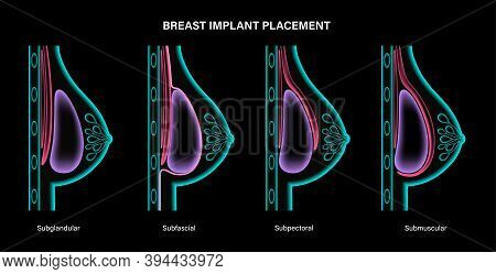 Breast Implant Types In Female Silhouette. 3d Realistic Poster, Xray Scanning. Subglandular, Subfasc