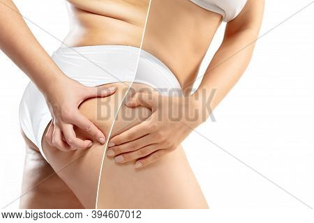 Overweight Woman With Cellulite Legs And Buttocks In White Underwear Comparing With Fit And Thin Bod